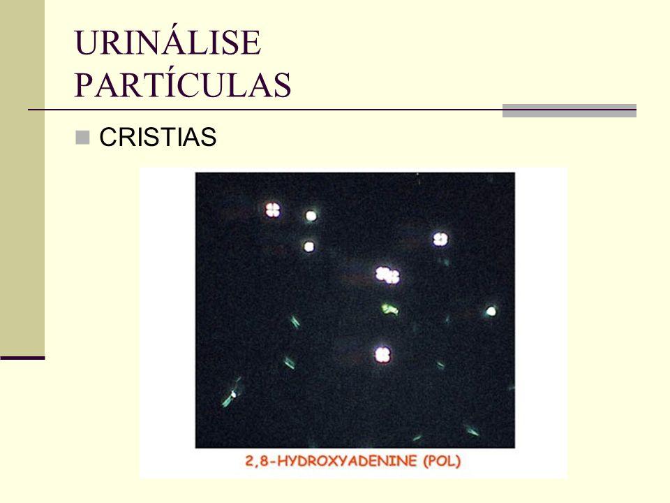 URINÁLISE PARTÍCULAS CRISTIAS