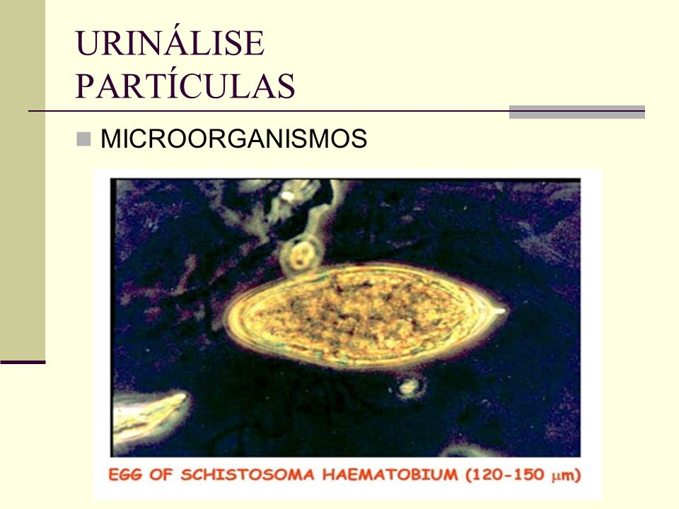 URINÁLISE PARTÍCULAS MICROORGANISMOS