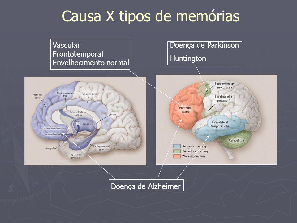 Causa X tipos de memórias