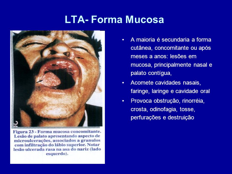LTA- Forma Mucosa