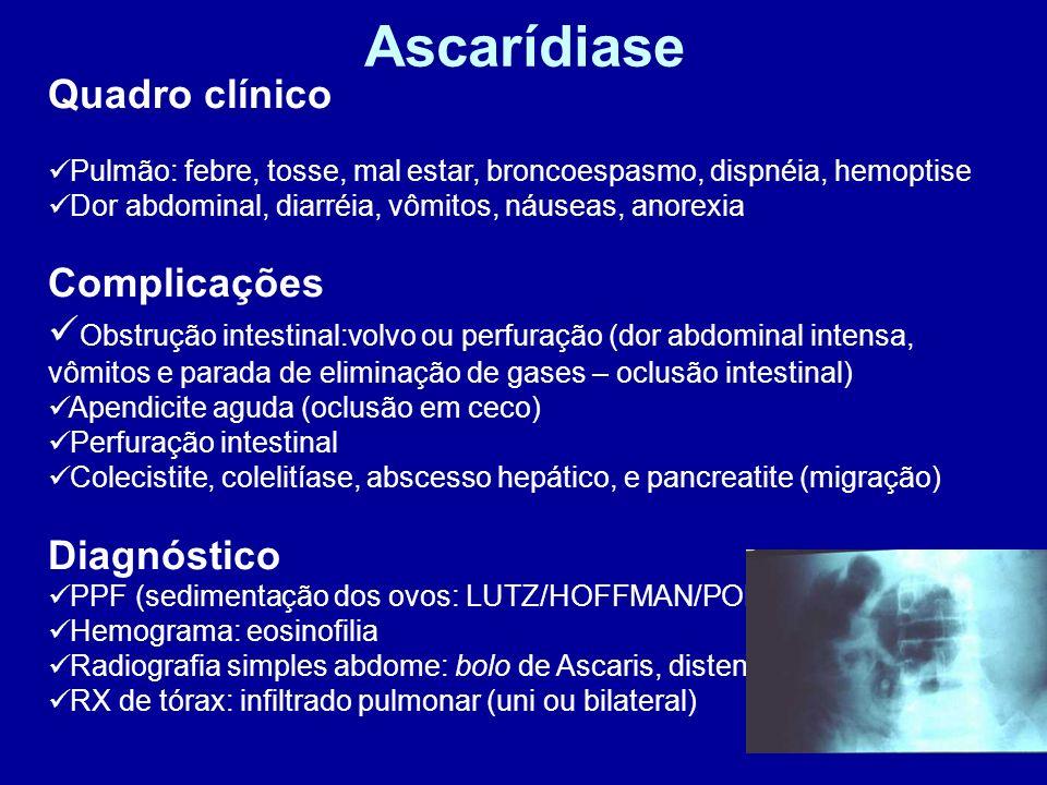 Ascarídiase Quadro clínico Complicações