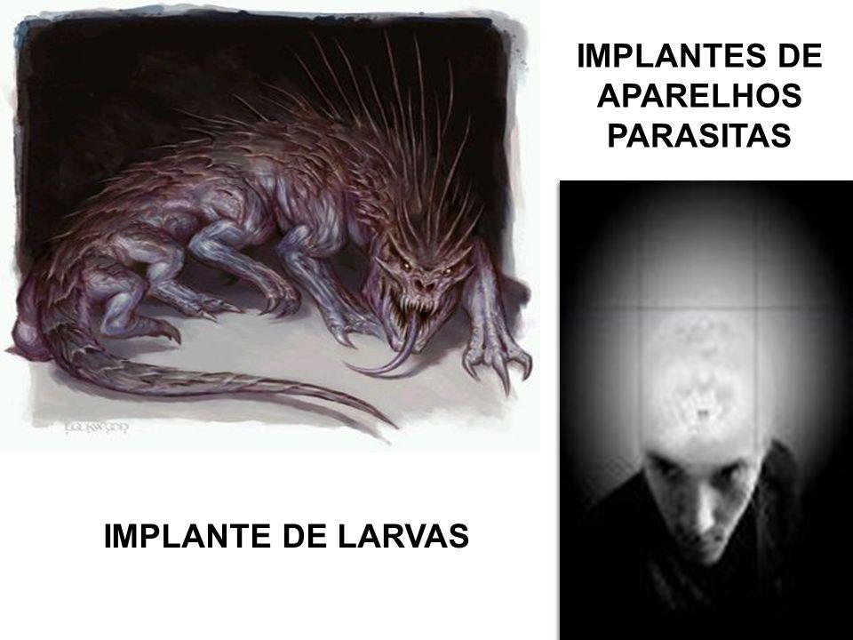 IMPLANTES DE APARELHOS PARASITAS