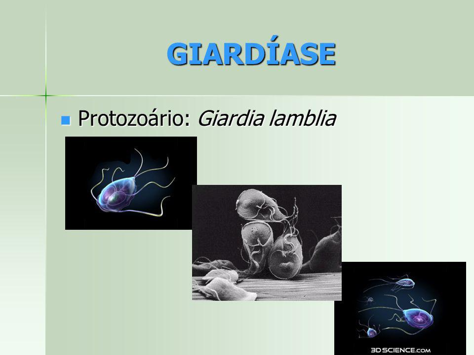 GIARDÍASE Protozoário: Giardia lamblia