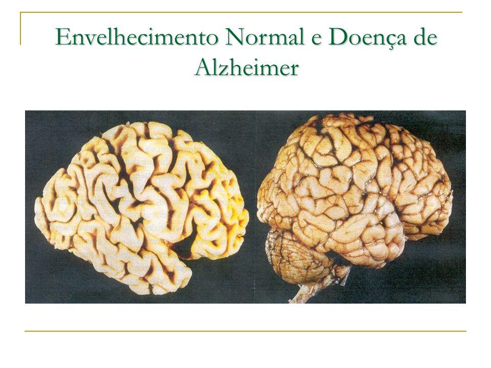 Envelhecimento Normal e Doença de Alzheimer