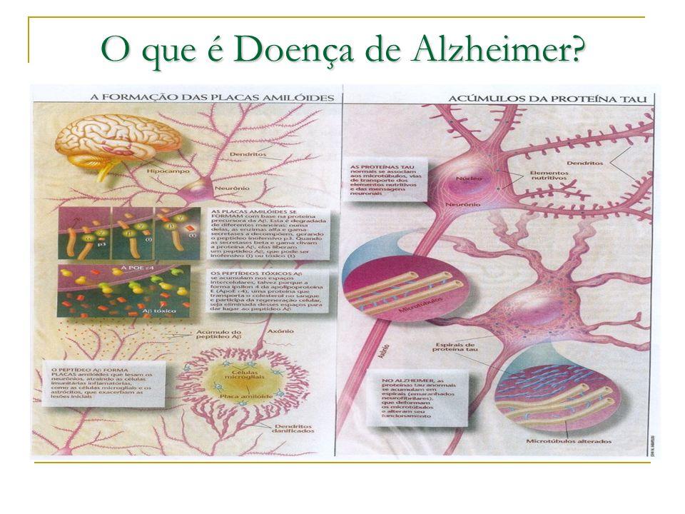 O que é Doença de Alzheimer