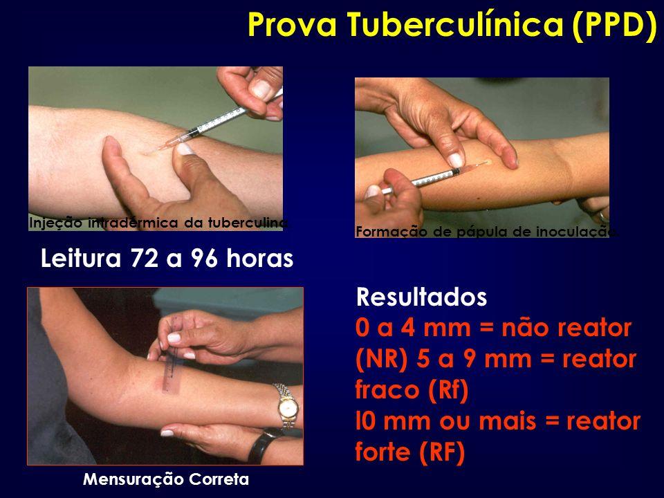 Prova Tuberculínica (PPD)