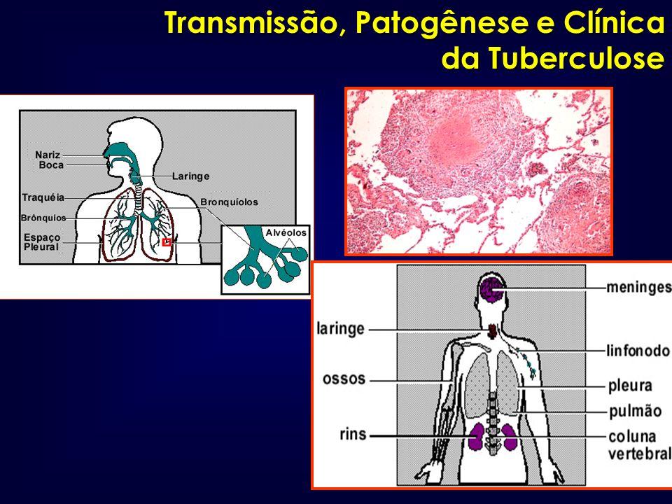 Transmissão, Patogênese e Clínica da Tuberculose