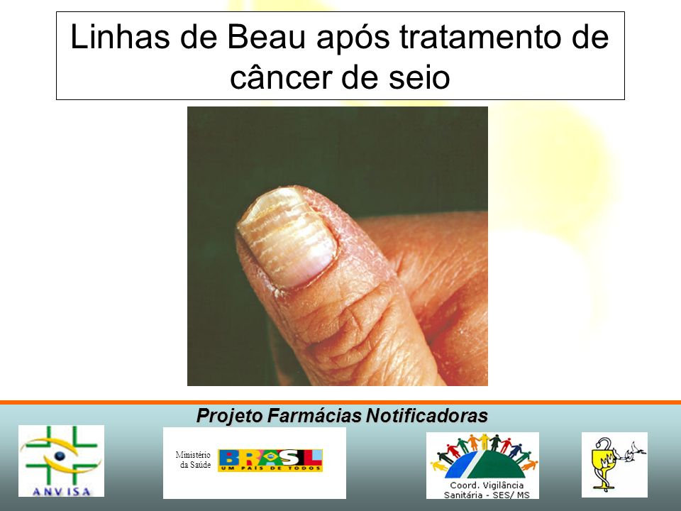 Linhas de Beau após tratamento de câncer de seio