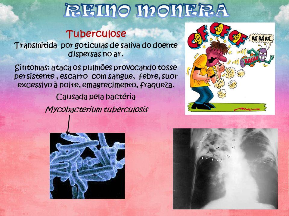 REINO MONERA Tuberculose