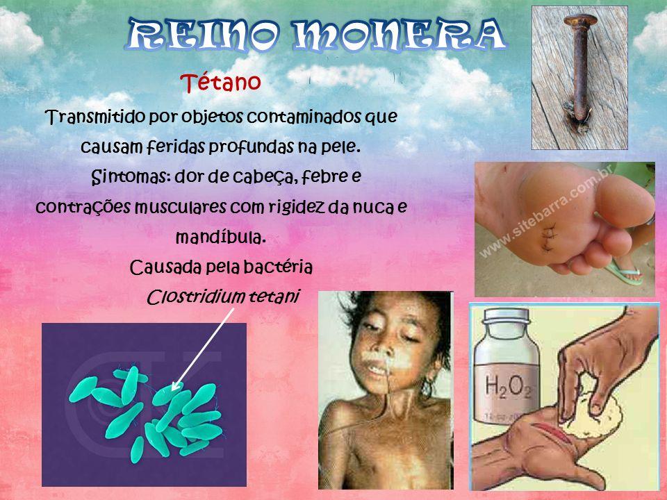 REINO MONERA Tétano. Transmitido por objetos contaminados que causam feridas profundas na pele.