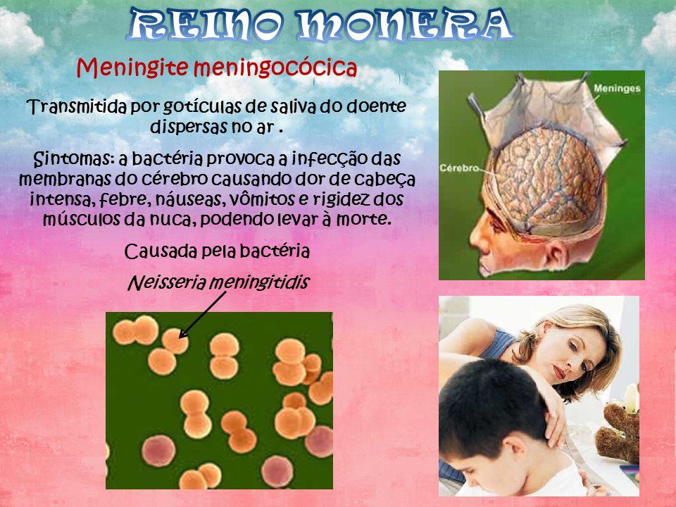 REINO MONERA Meningite meningocócica