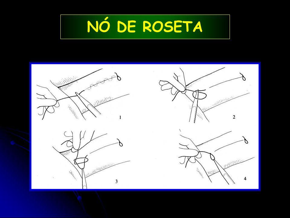 NÓ DE ROSETA