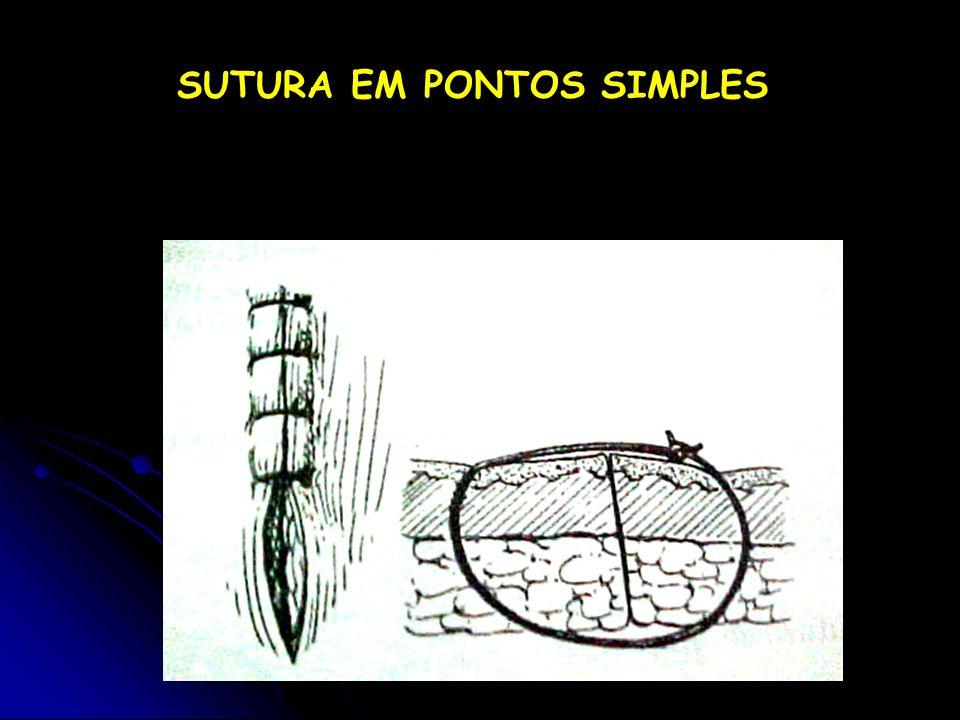 SUTURA EM PONTOS SIMPLES