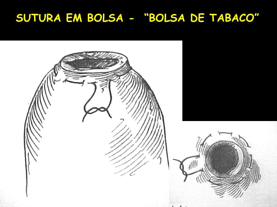 SUTURA EM BOLSA - BOLSA DE TABACO
