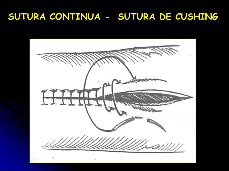 SUTURA CONTINUA - SUTURA DE CUSHING
