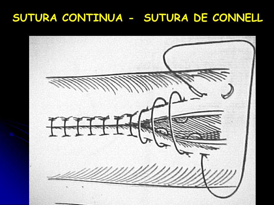 SUTURA CONTINUA - SUTURA DE CONNELL