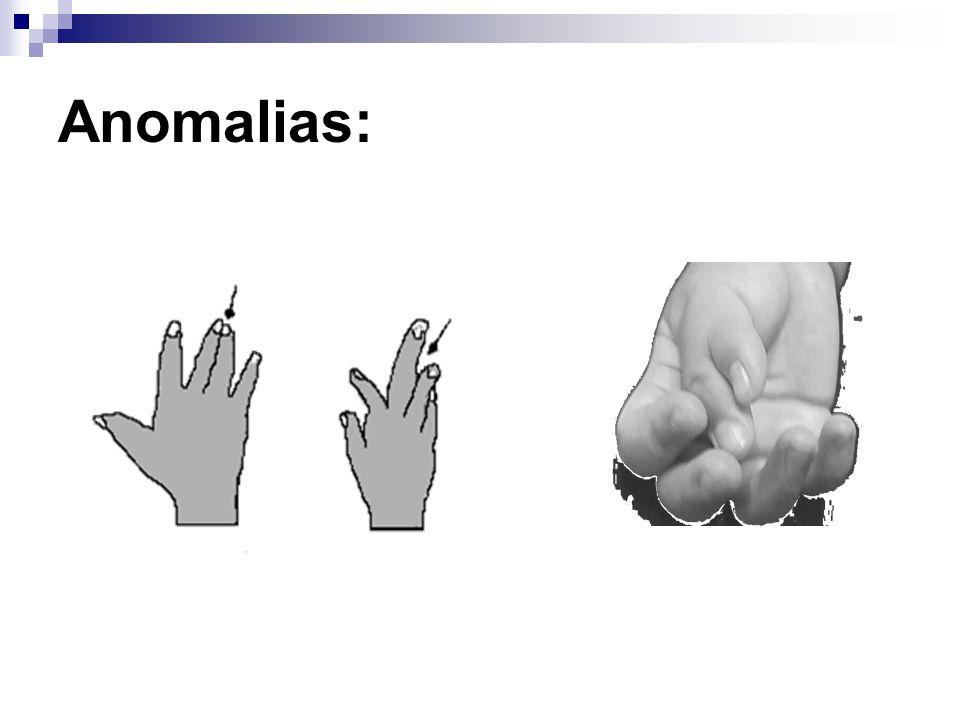 Anomalias: