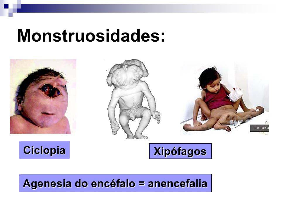 Agenesia do encéfalo = anencefalia