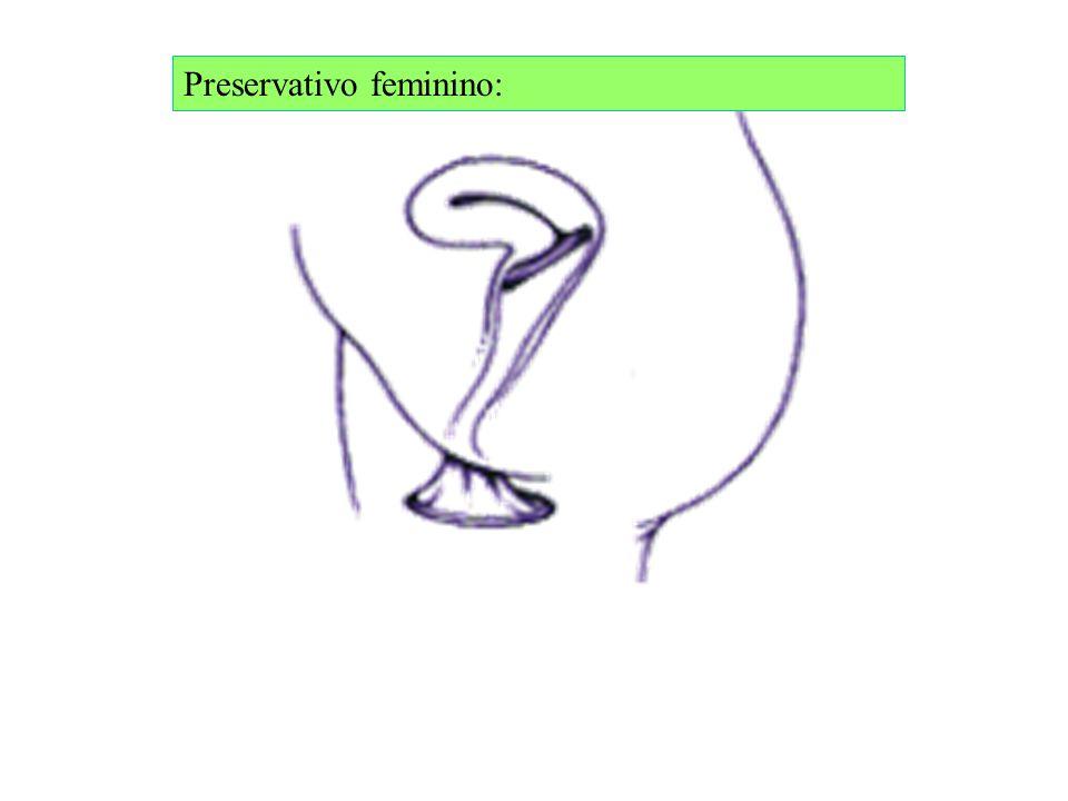 Preservativo feminino: