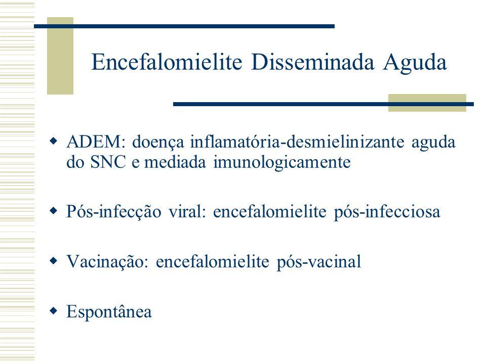 Encefalomielite Disseminada Aguda