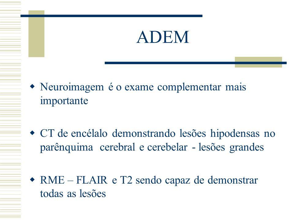 ADEM Neuroimagem é o exame complementar mais importante