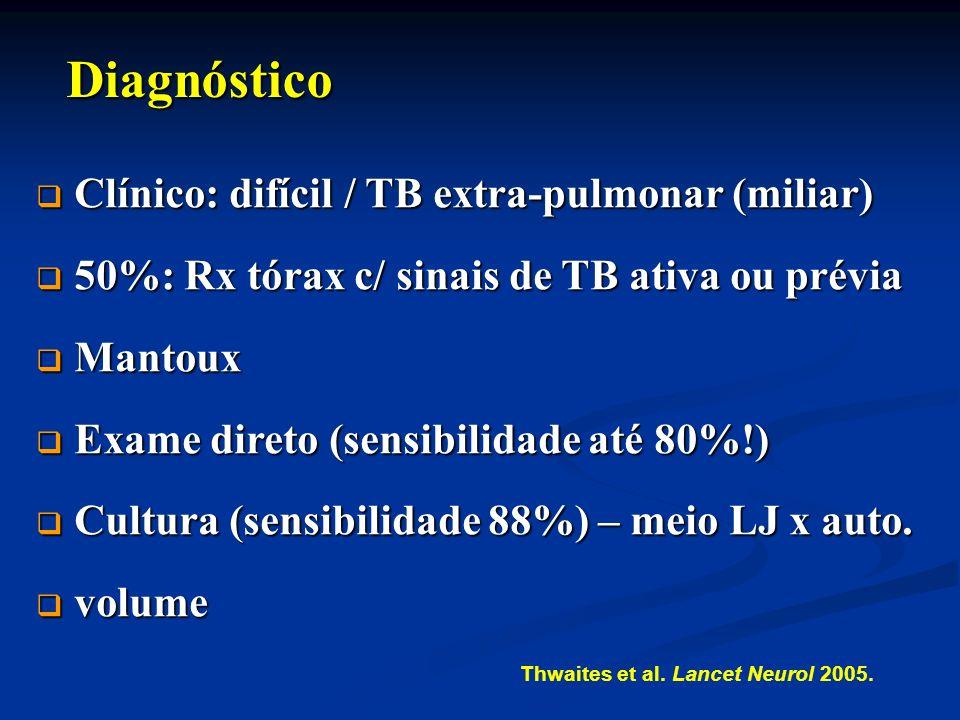 Diagnóstico Clínico: difícil / TB extra-pulmonar (miliar)