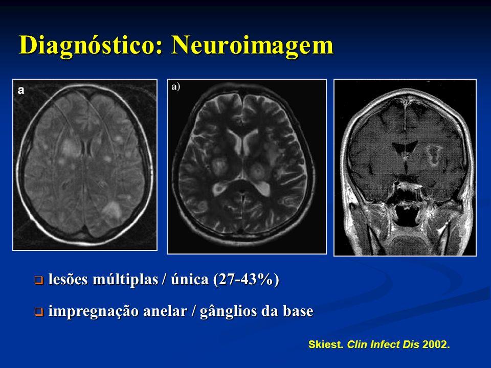 Diagnóstico: Neuroimagem