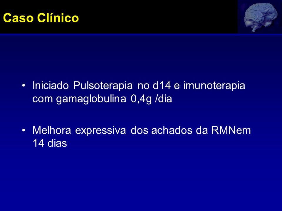 Caso Clínico Iniciado Pulsoterapia no d14 e imunoterapia com gamaglobulina 0,4g /dia.