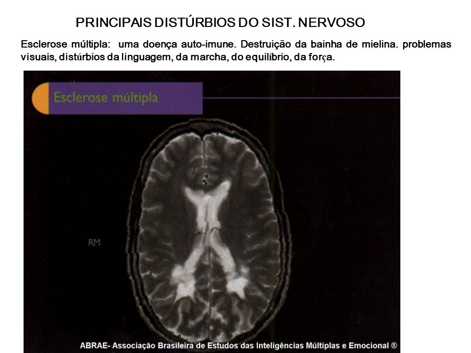 PRINCIPAIS DISTÚRBIOS DO SIST. NERVOSO