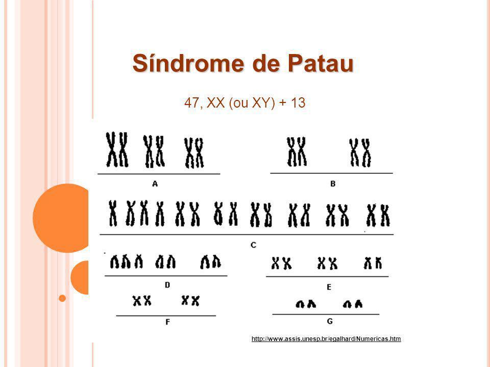 Síndrome de Patau 47, XX (ou XY) + 13