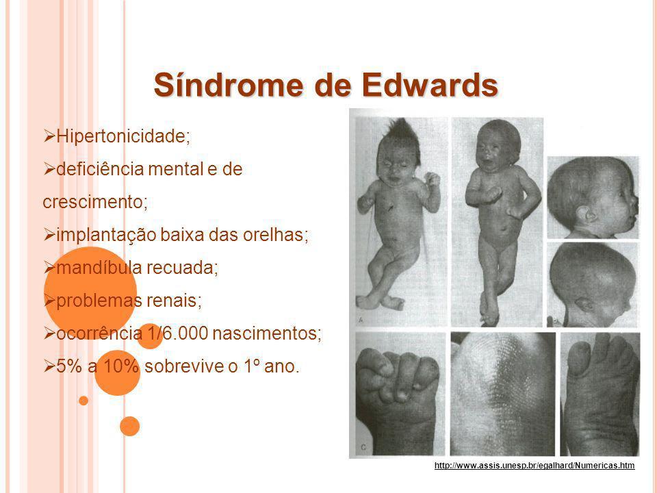 Síndrome de Edwards Hipertonicidade;