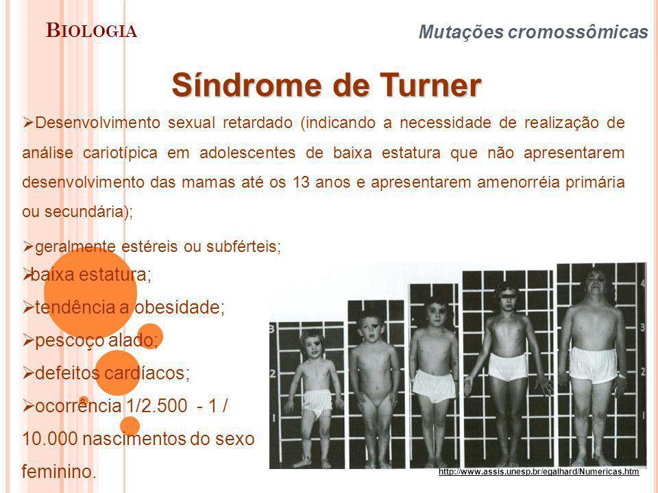 Síndrome de Turner Biologia Mutações cromossômicas baixa estatura;