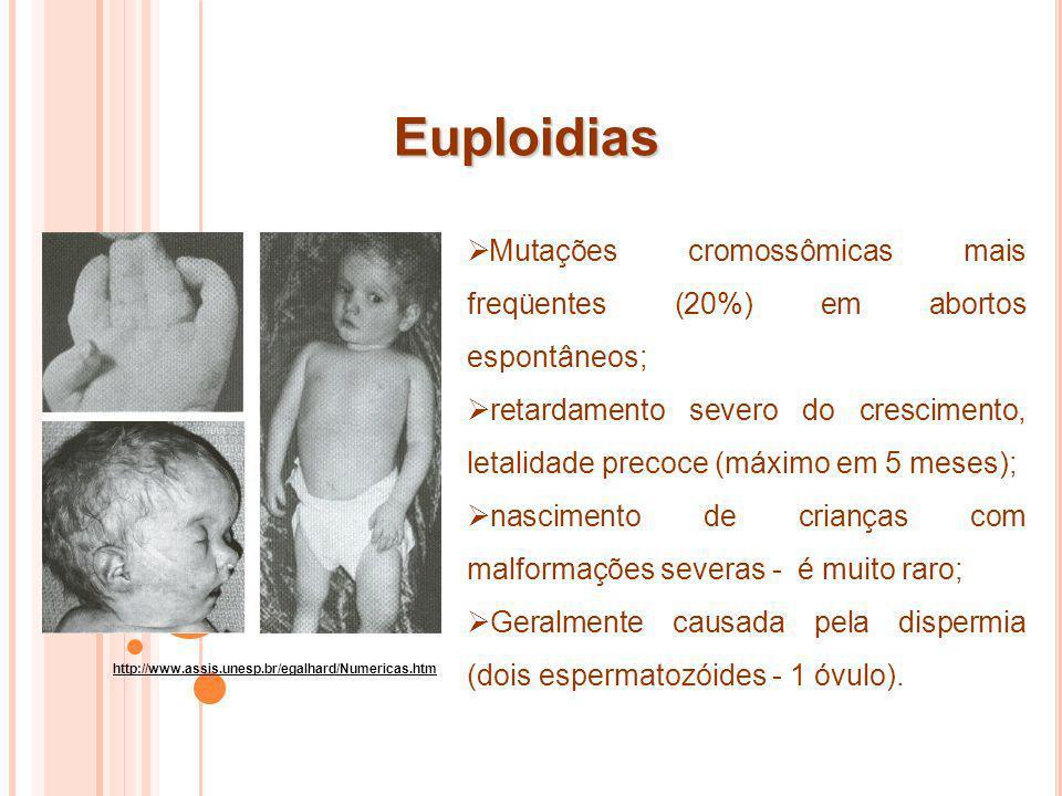 Euploidias Mutações cromossômicas mais freqüentes (20%) em abortos espontâneos;