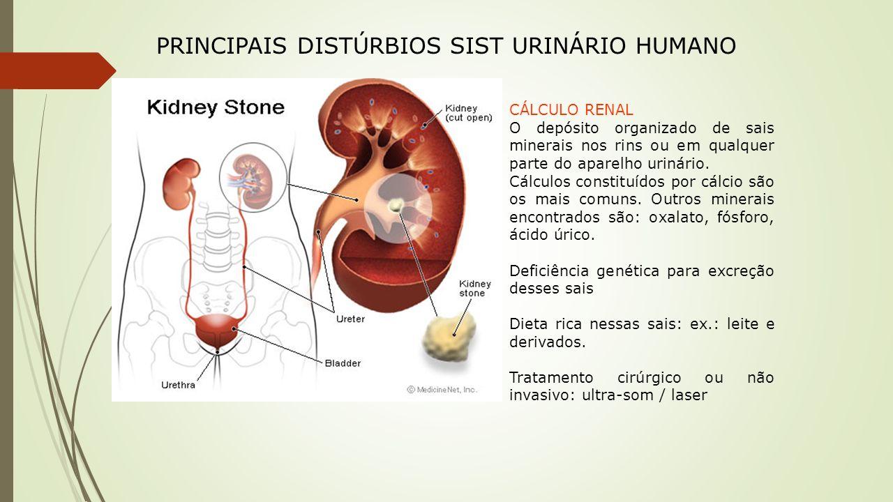 PRINCIPAIS DISTÚRBIOS SIST URINÁRIO HUMANO