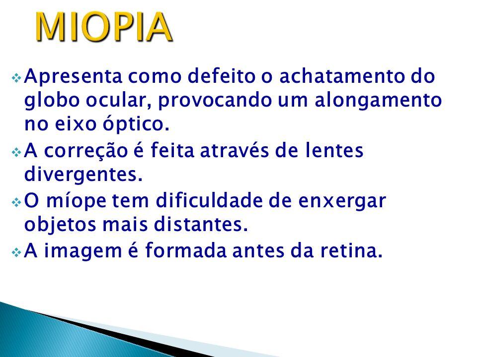 MIOPIA Apresenta como defeito o achatamento do globo ocular, provocando um alongamento no eixo óptico.