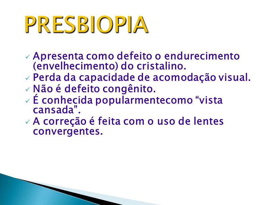 PRESBIOPIA Apresenta como defeito o endurecimento (envelhecimento) do cristalino. Perda da capacidade de acomodação visual.