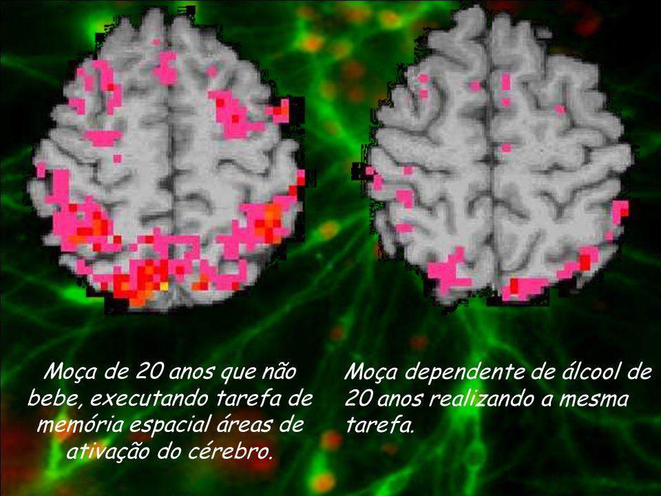 Moça de 20 anos que não bebe, executando tarefa de memória espacial áreas de ativação do cérebro.