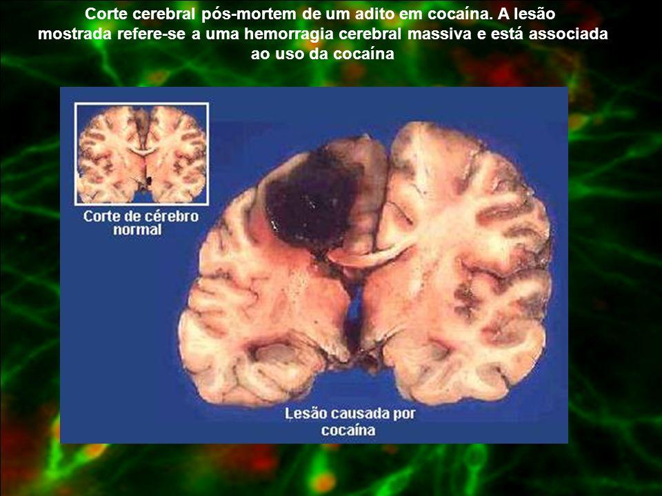 Corte cerebral pós-mortem de um adito em cocaína