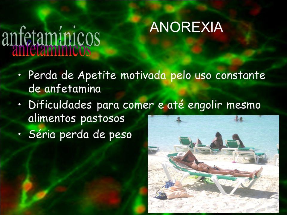 ANOREXIA anfetamínicos