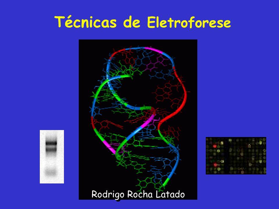 Técnicas de Eletroforese