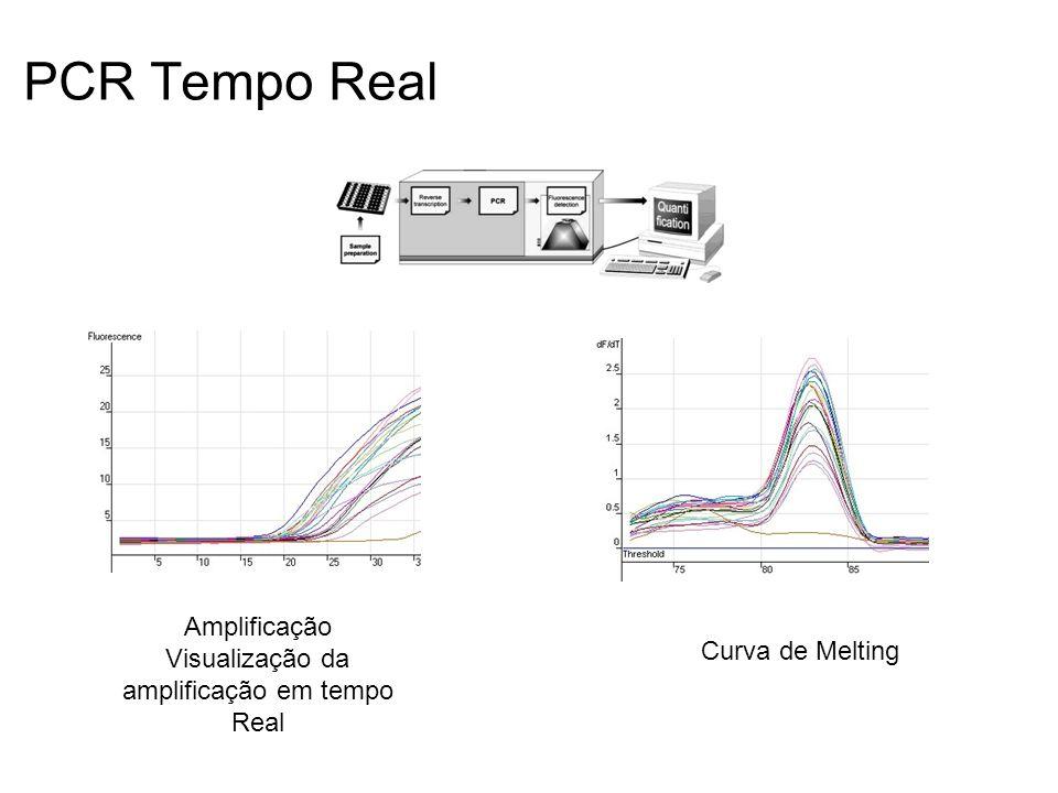 Amplificação Visualização da amplificação em tempo Real