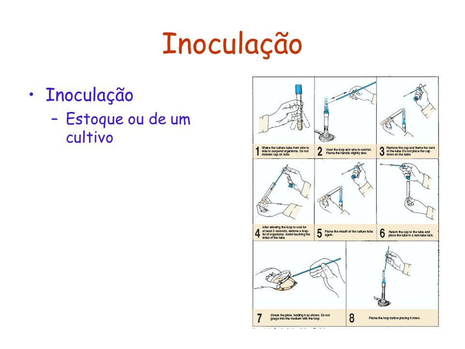 Inoculação Inoculação Estoque ou de um cultivo