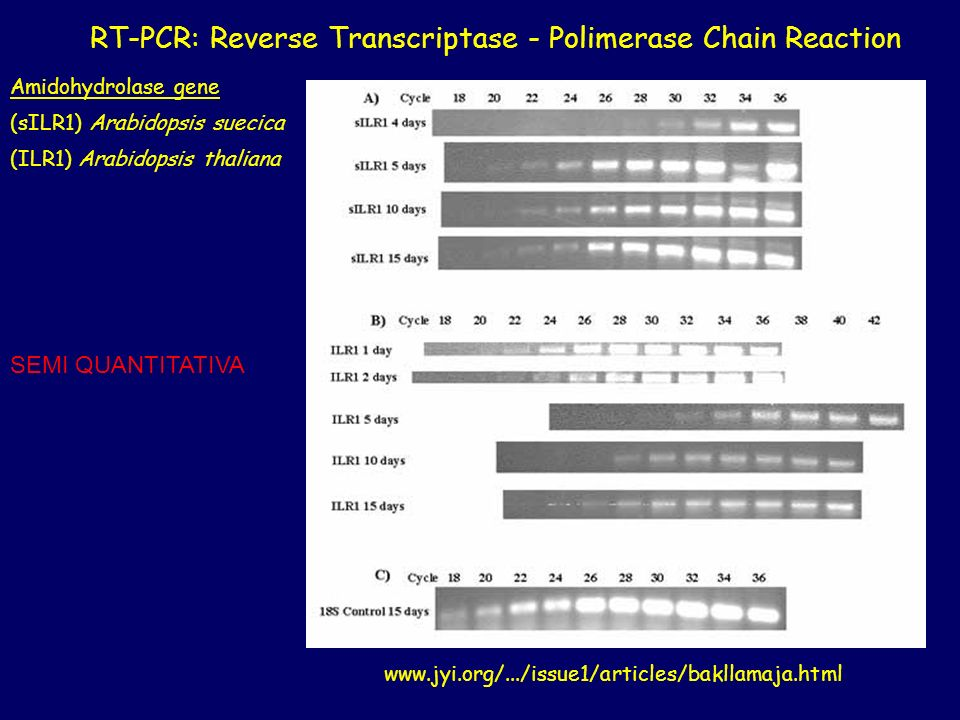 RT-PCR: Reverse Transcriptase - Polimerase Chain Reaction
