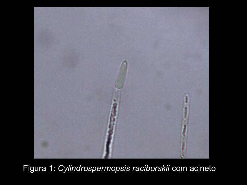 Figura 1: Cylindrospermopsis raciborskii com acineto
