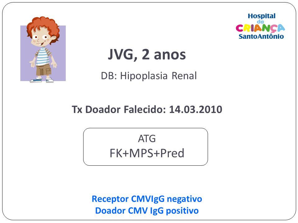 JVG, 2 anos DB: Hipoplasia Renal