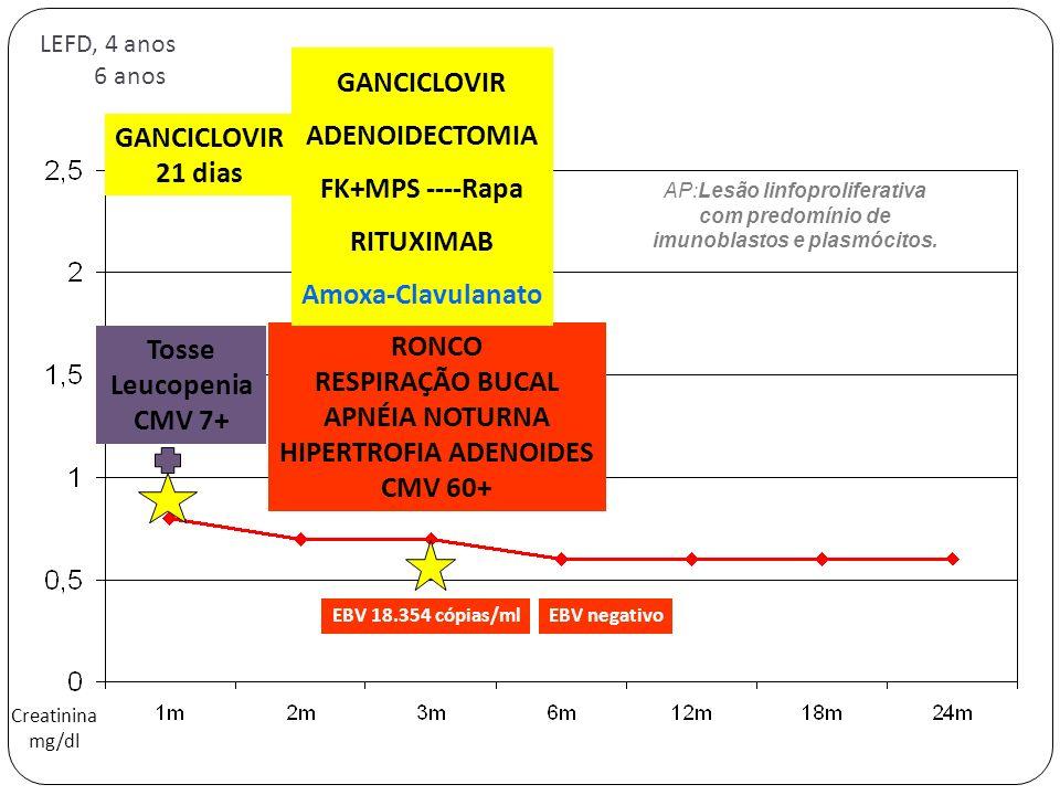 imunoblastos e plasmócitos. HIPERTROFIA ADENOIDES