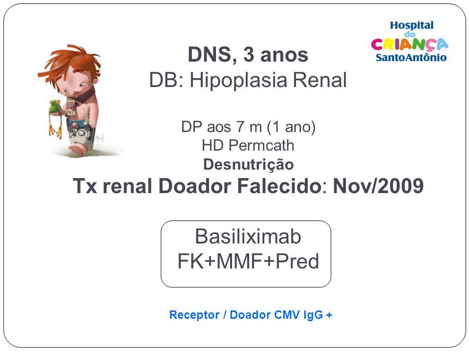 Tx renal Doador Falecido: Nov/2009 Basiliximab FK+MMF+Pred
