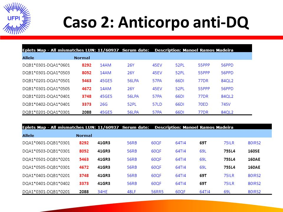 Caso 2: Anticorpo anti-DQ