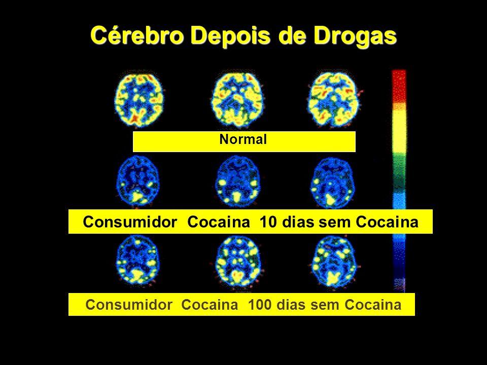 Cérebro Depois de Drogas