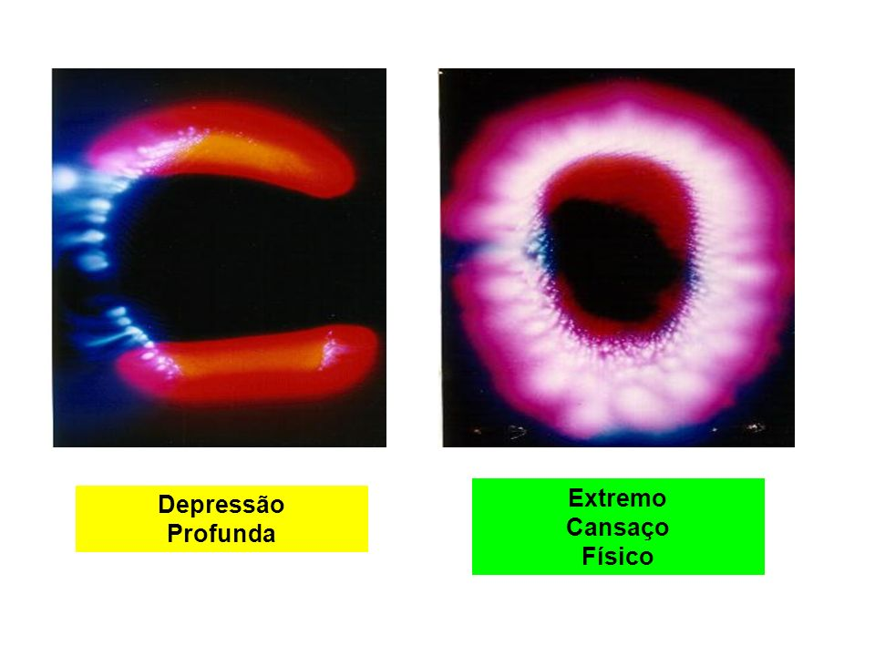 Extremo Cansaço Físico Depressão Profunda